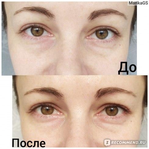 Как быстро убрать темные круги под глазами отзывы врачей косметологов