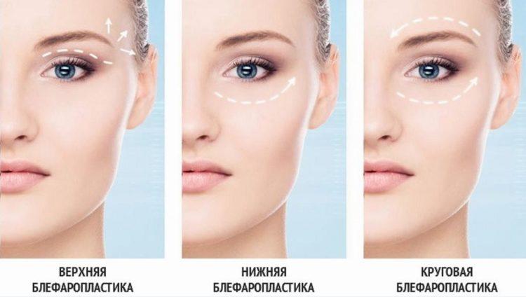 Блефаропластика отзывы врачей косметологов