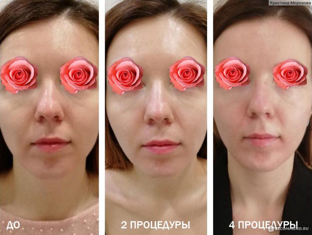 Липолитики для лица отзывы врачей косметологов