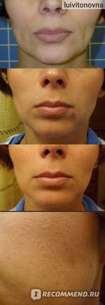 Армирование, бланширование кожи отзывы врачей косметологов