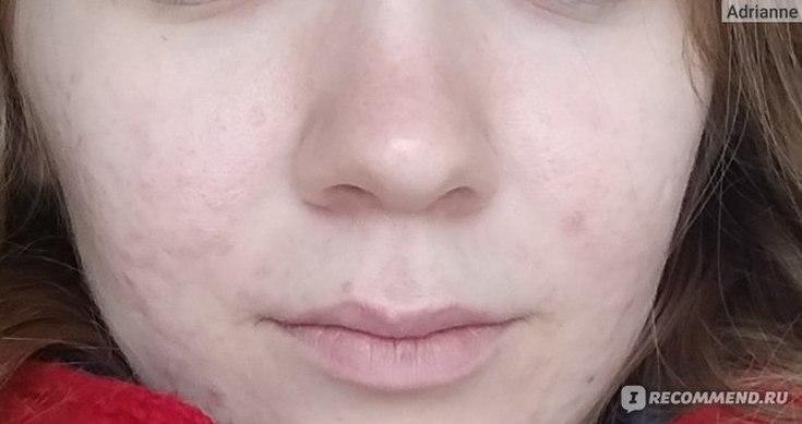 Пилинг кожи лица отзывы врачей косметологов