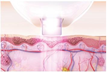 IPL для лица отзывы врачей косметологов
