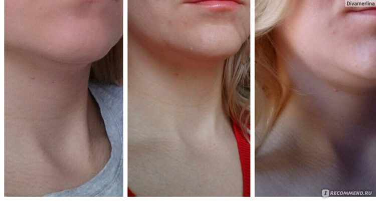 Биостимуляция лица отзывы врачей косметологов